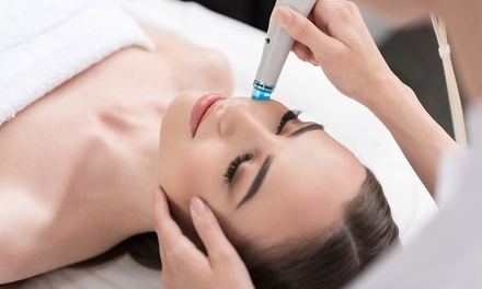 Microdermabrasion Treatments in Largo, FL (2793063)