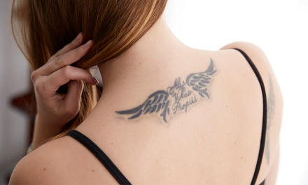 Laser Tattoo Removal in Ripley, WV (4347184)